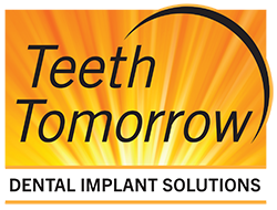 Teeth Tomorrow: Dental Implant Solutions